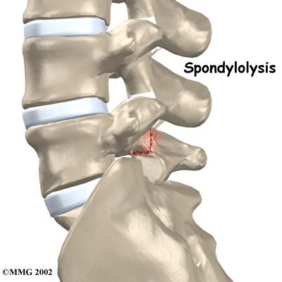 Lumbar Spondylolysis