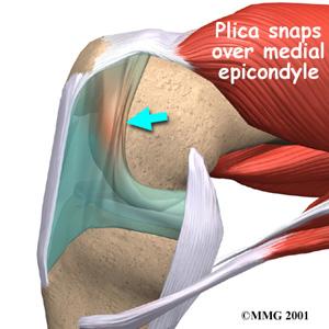 Plica Syndrome