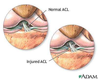 acl-injury