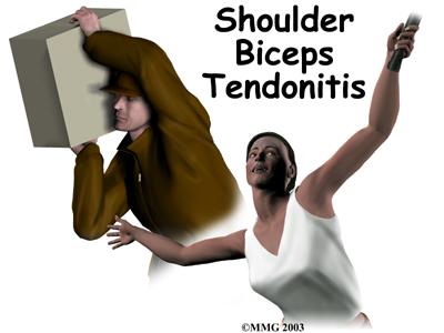 biceps-tendonitis