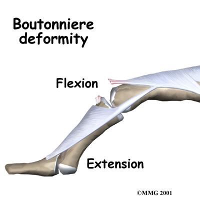boutonniere-deformity