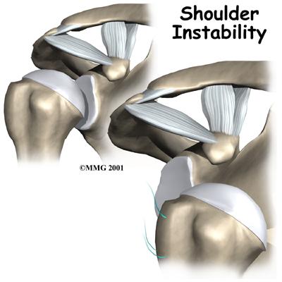 instability-shoulder