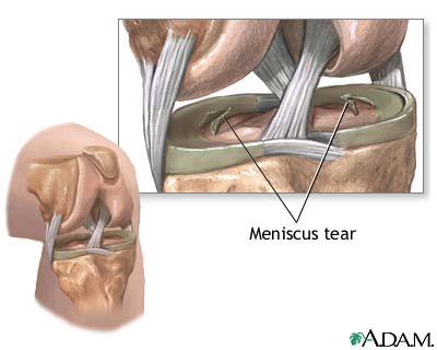 meniscal-tears