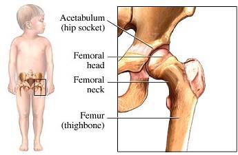 pediatric-hip