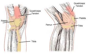 quadriceps-tendon-tear
