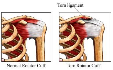 rotator-cuff-tear