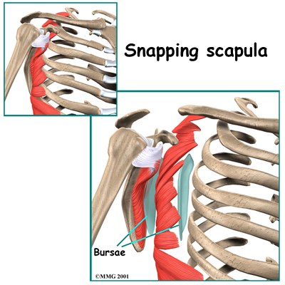 snapping-scapula-syndrome
