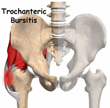 trochanteric-bursitis