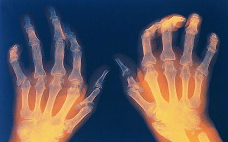 Arthritis Rheumatoid Protein (ARP)