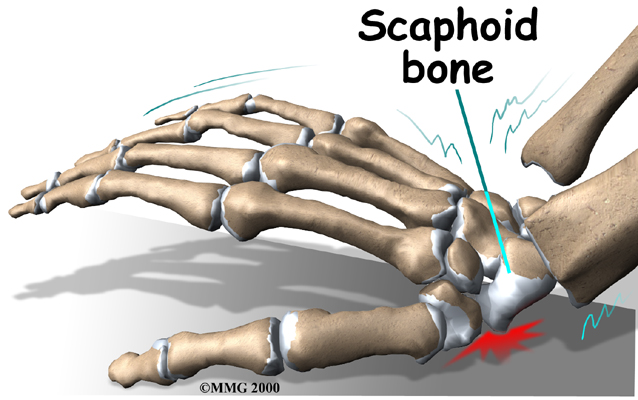 Scaphoid Fracture of the Wrist