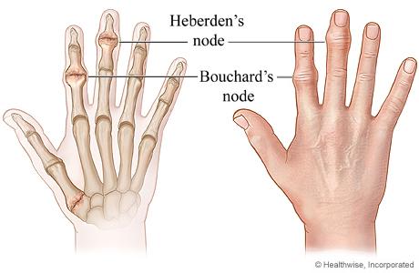 Heberden nodes